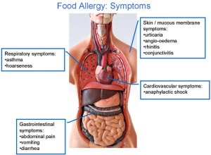 Here's what can happen with food allergy!