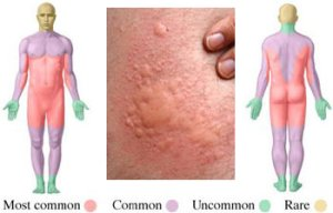 Common locations of hives